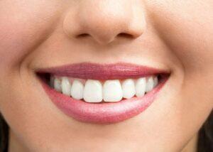 gum contouring patient showing her teeth