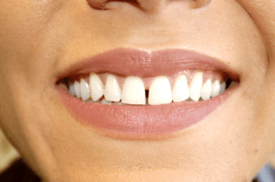 Dental Patient with Gap in Teeth