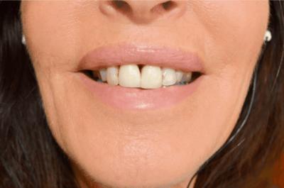 Gum Disease Patient with Gaps in her Teeth