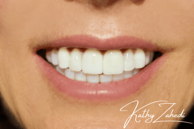 patient showing beautiful smile after procedure