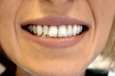 santa monica dental patient with crooked teeth