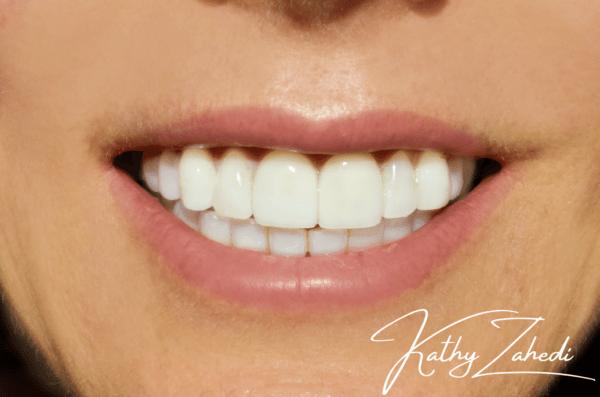dental patient before