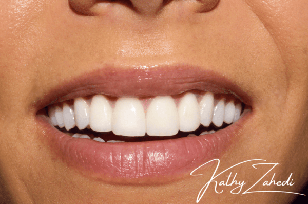 cosmetic dental patient after