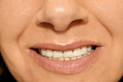 santa monica dental patient with grinded teeth