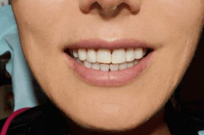 teeth grinding patient